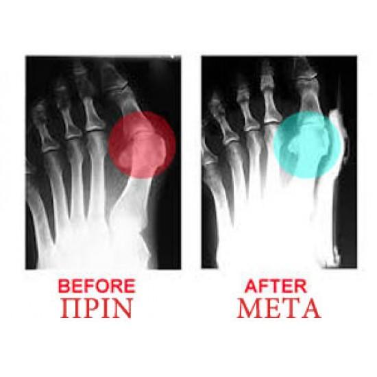 2 Τεμάχια Χ Κότσι μεγάλου δαχτύλου θεραπεία Νάρθηκας Σιλικόνης για όλη τη μέρα.